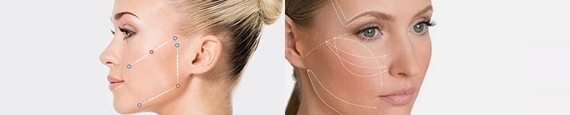 Bioestimulacion Regenerativa Facial