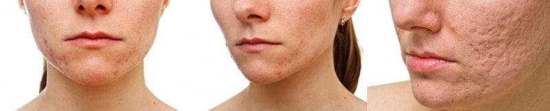 Cicatrices de acné