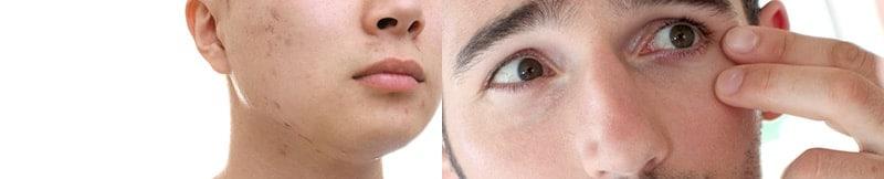 Cicatrices y Arrugas