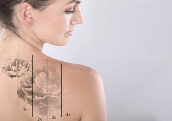 Cderma Remoción Tatuajes
