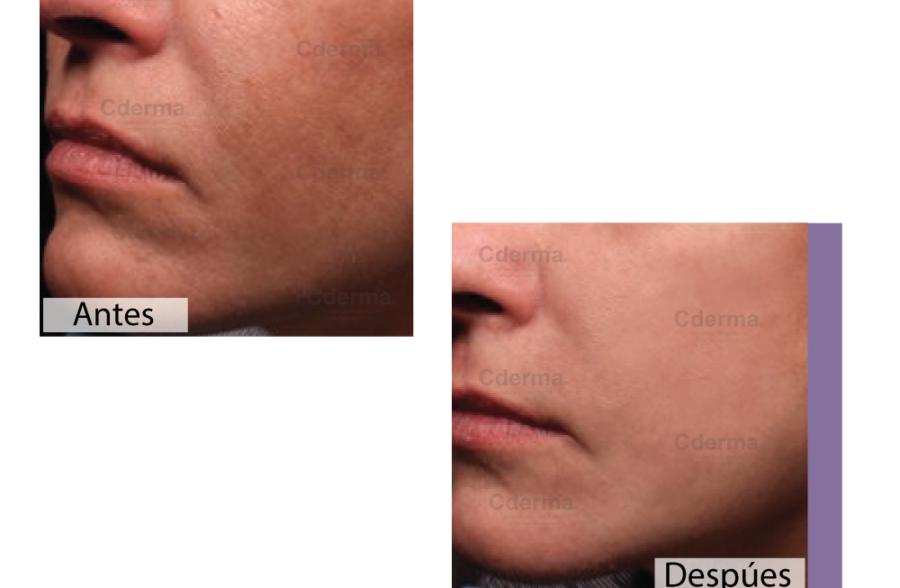 Dermatología Cderma